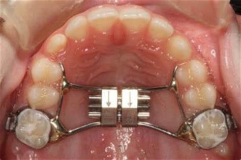 Д-р Цветомир Бадов - Ортодонт | Разширяване на горната челюст при деца – кога се извършва и защо е необхидимо?