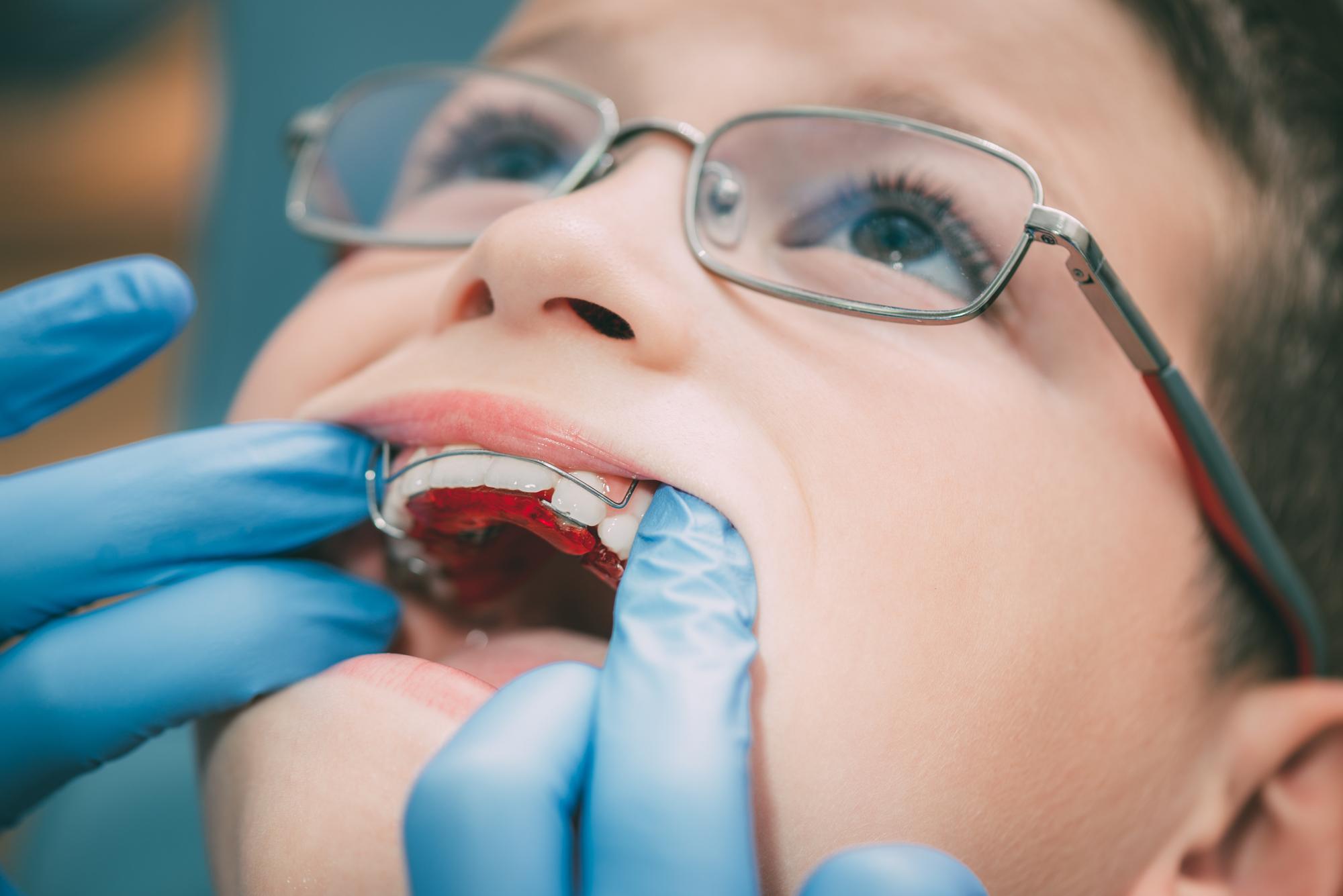 Ортодонтски апарати
