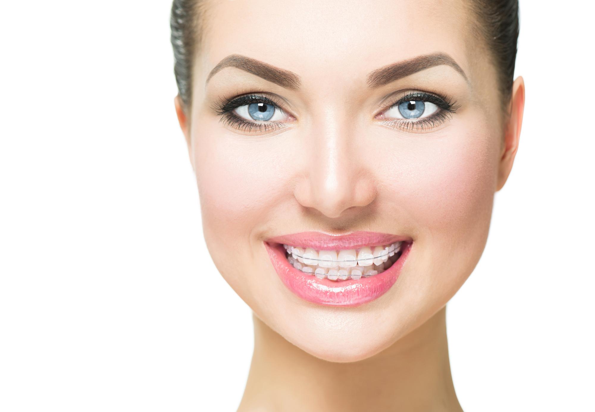 Ортодонтско лечение – какво трябва да знам като родител или бъдещ пациент?