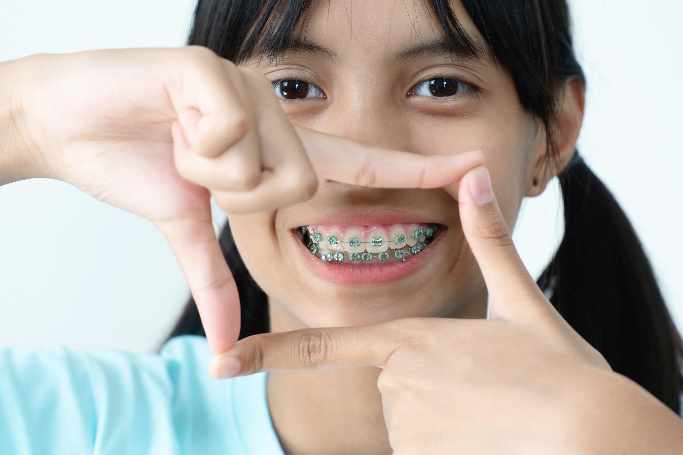 За колко време се изправят зъбите с брекети?